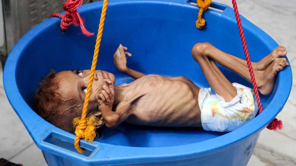 Yemen Could Face Brink of Famine Again – UN Warns